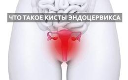 Киста эндоцервикса